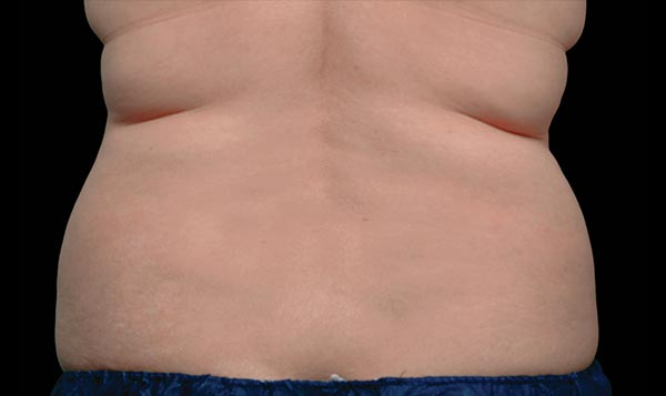 CoolSculpting® Before & After Pictures | CoolSculpting®