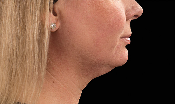 how to reduce double chin fat coolsculpting