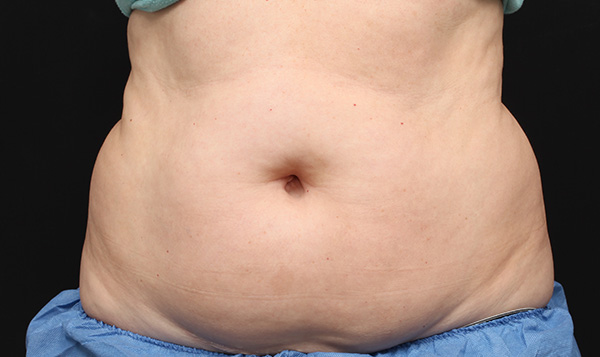 Coolsculpting Before After Pictures Coolsculpting