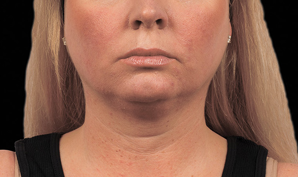 How to Reduce Double Chin Fat | CoolSculpting