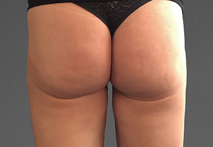 Female Buttocks After CoolTone